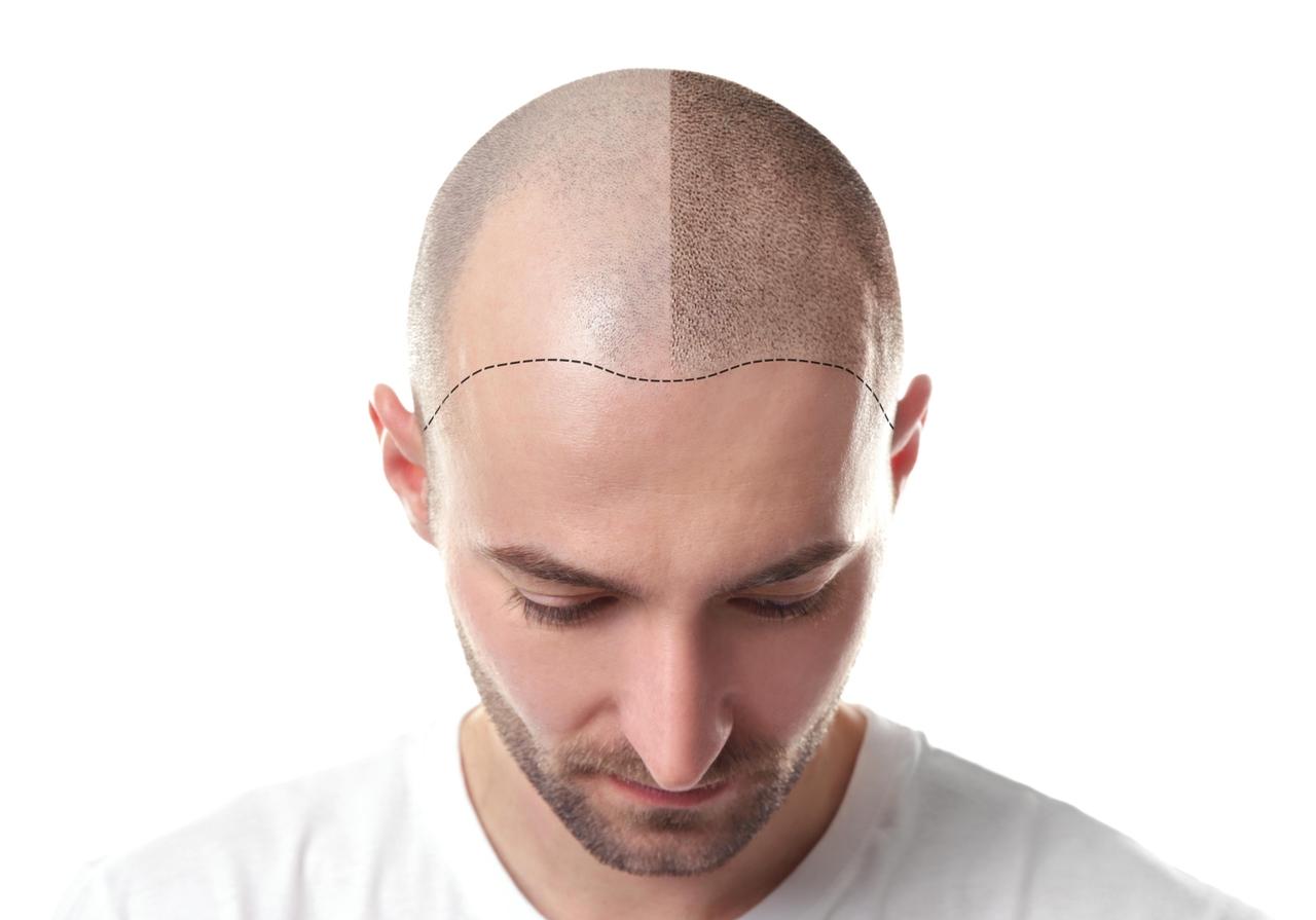 Saç simülasyonu nedir sorusuna yanıt niteliğinde saç simülasyonu uygulaması öncesi ve sonrasını gösteren kafa görseli