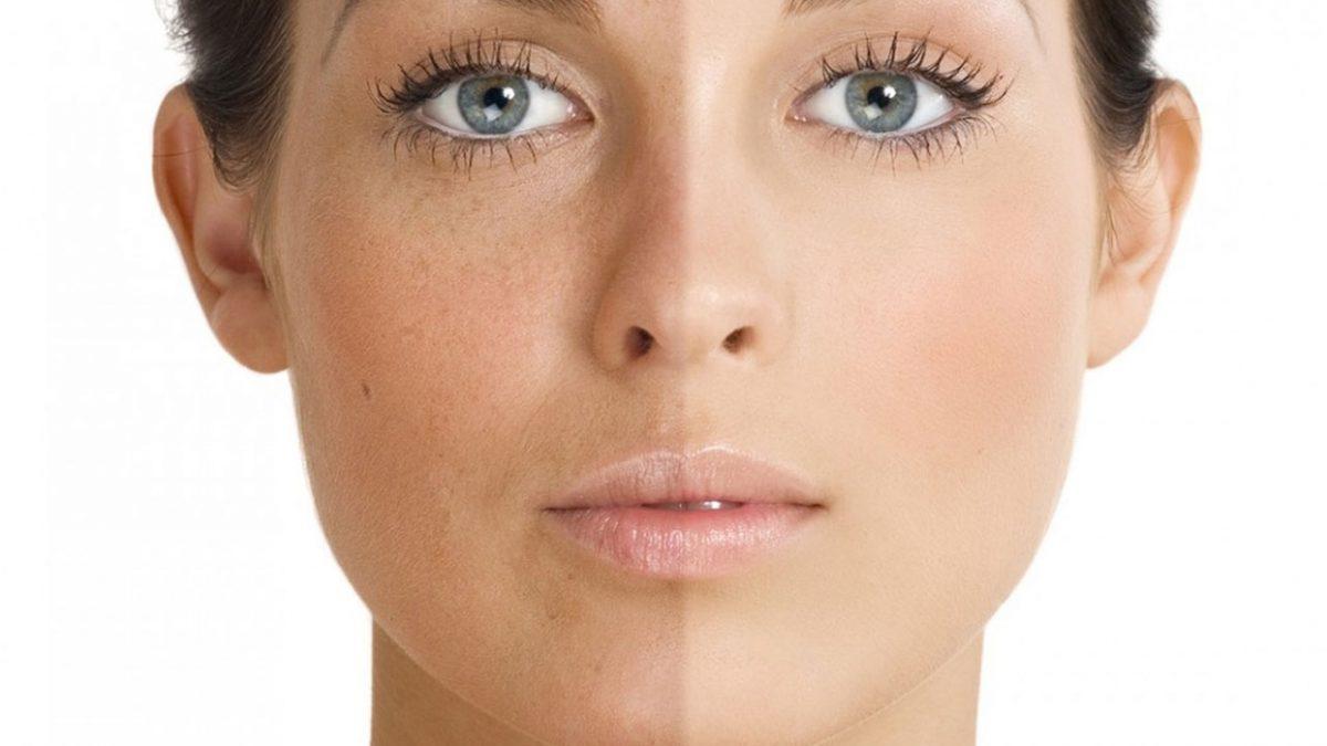 BB Glow uygulaması ile yüzünün cilt rengi farklı kadın yüzü