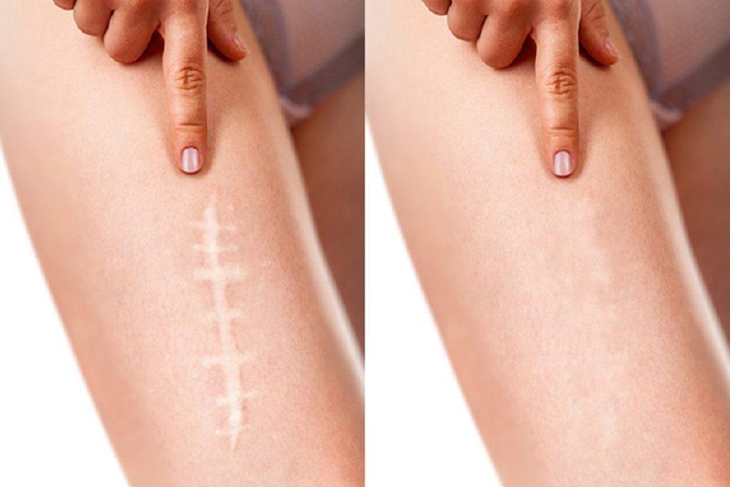 ilk fotoğrafta bacakta bir yara izi var ikinci fotoğrafta ise kamuflaj kontür ile yaranın kapanışı