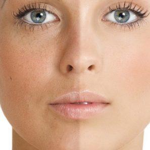 BB glow uygulamasının öncesi ve sonrasının bir kadının yüzünde gösterimi