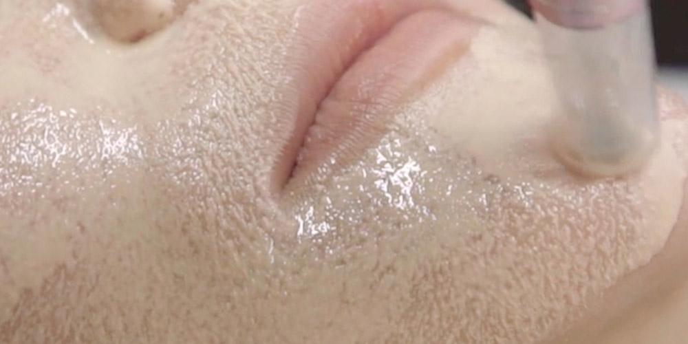 BB glow uygulanan bir kadının dudak ve çene bölgesi