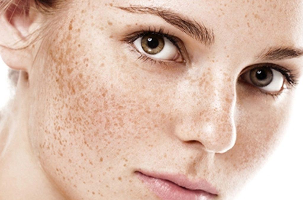 yüzünde lekeler olan yeşil gözlü bir kadın