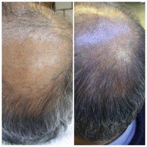 saç simülasyonu 2