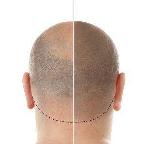 saç simülasyonu1