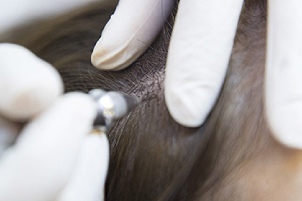 Saç derisine saç simülasyonu işleminin uygulanışı