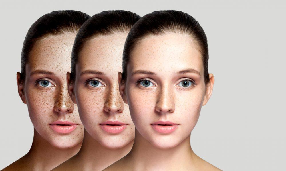 Leke tedavisi ile yüzündeki lekelerden aşamalı olarak kurtulan kadının 3 farklı fotoğrafı