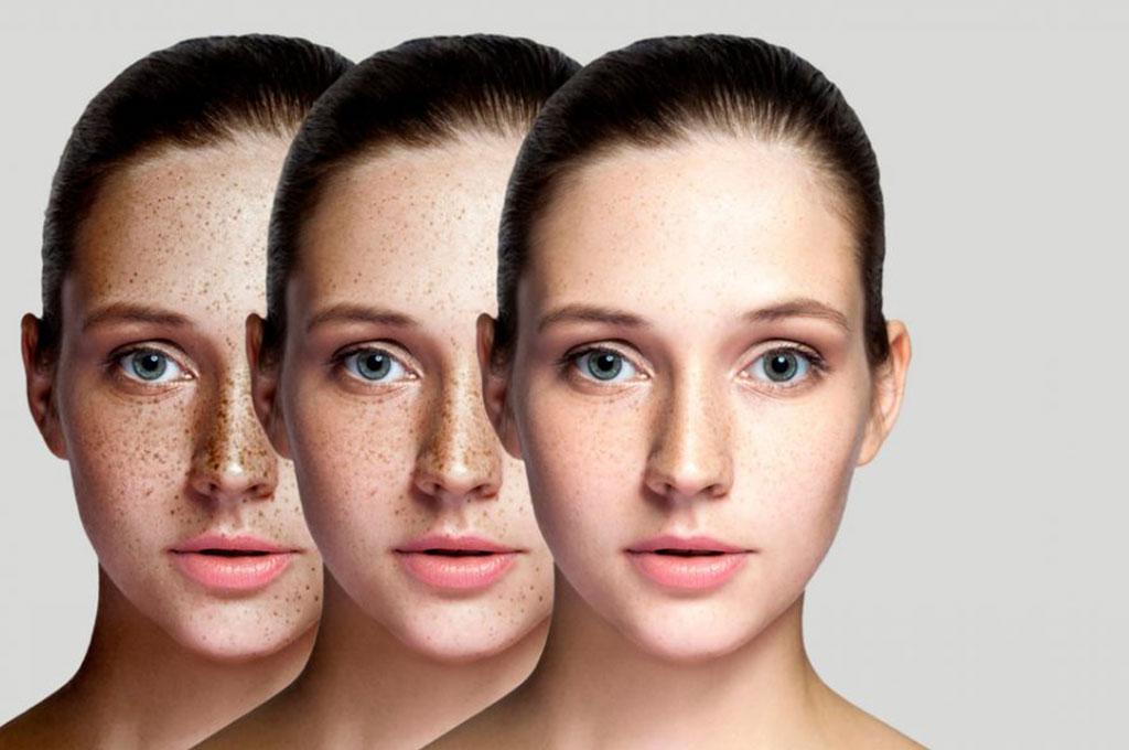 Leke tedavisi ile zamanla lekelerinden kurtulan kadının 3 farklı hali