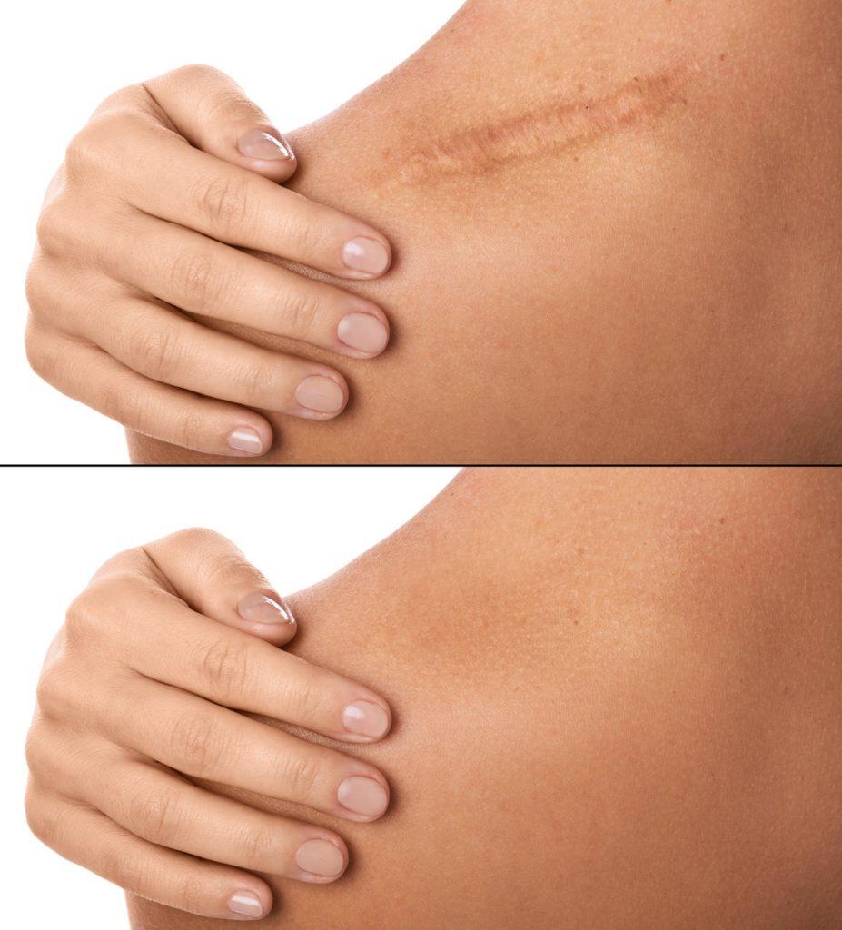 Yara izi nasıl geçer sorusuna yanıt niteliğinde omzundaki yarayı gösteren kadın ve yara izinin geçmiş hali