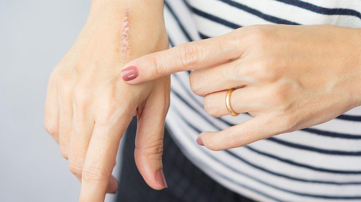 Diğer elinin üzerindeki yarayı işaret parmağı ile gösteren kadın