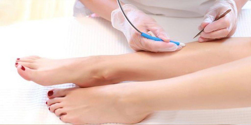 Bacaklara uygunana iğneli epilasyon işlemi